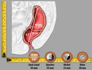rectum_coins